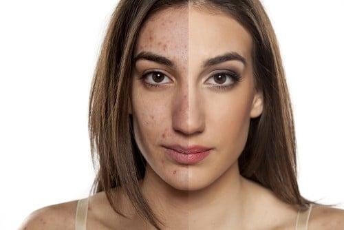 acne-solihul