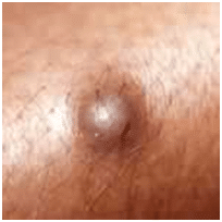 Lancing A Cyst With A Needle