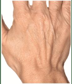hand0