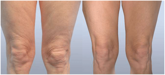 Before and After Fractora Forma Firm Plus