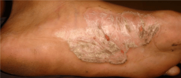 dermatitis-before