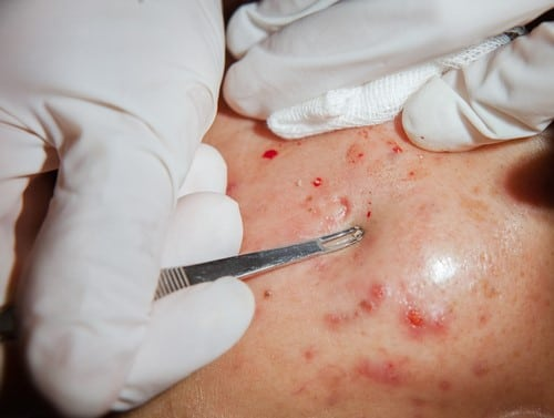 Acne Folicile Removal