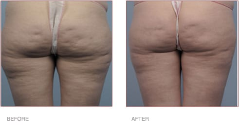 Before and After Cellulite Treatment