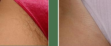 Laser Hair Removal - Bikini Area