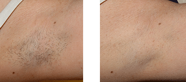 Laser Hair Removal - Arm Pit
