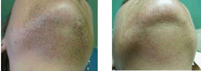 Laser Hair Removal on Chin
