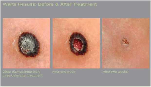 Before and After Wart Removal Treatment