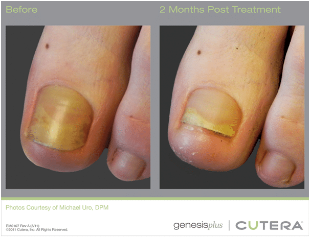 Genesis Treatment - Before and After
