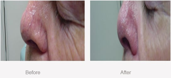 Before and After Thread Veins in Nose