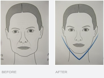 Before and After Jaw Line Slimming