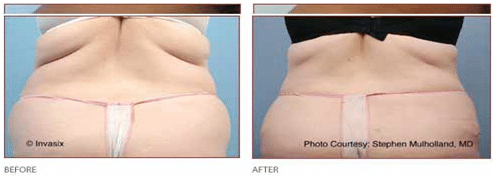 Before and After Fat Removal Flanks, Hips and Thighs