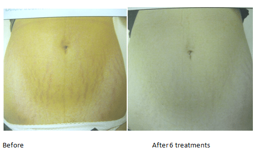 Before and After Stretch Mark Treatment