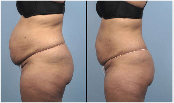 Before and 6 Weeks After Cellulite Treatment