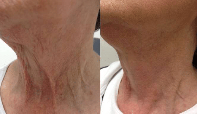 Before and After Fractora Forma Treatment
