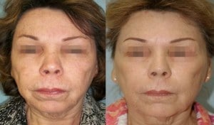 Before and after 2 treatments