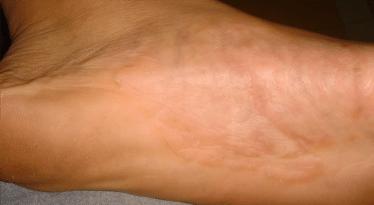 dermatitis-after
