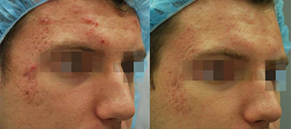 Before and After Fractora Active Treatment