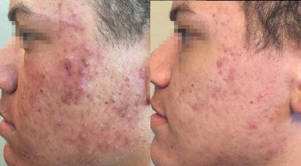 Before and After Fractora Active